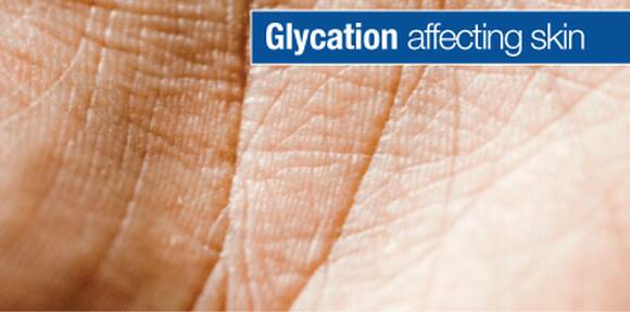 Glycation and Cross-linking – What is it and how can I prevent sagging or wrinkling?